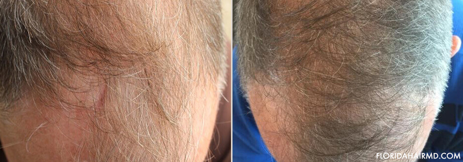 Before & After Stem Cell Hair Restoration