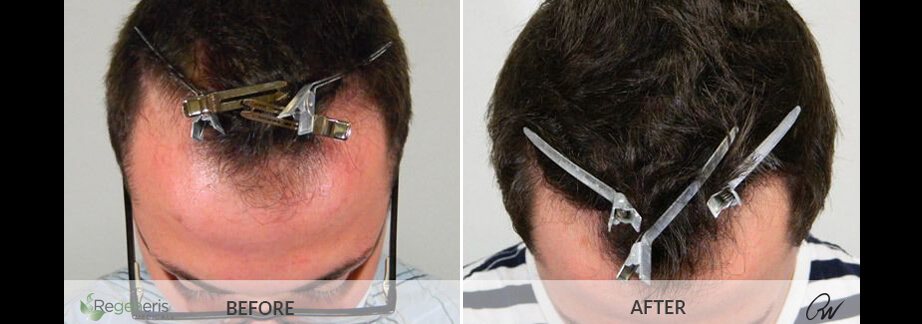 Stem Cell Hair Restoration Treatment Before & After