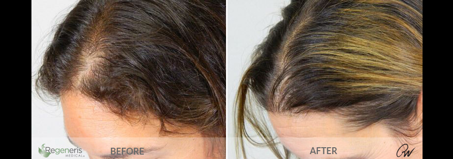 Stem Cell Hair Restoration Results