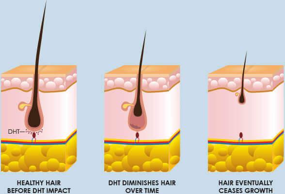 DHT & Hair Loss
