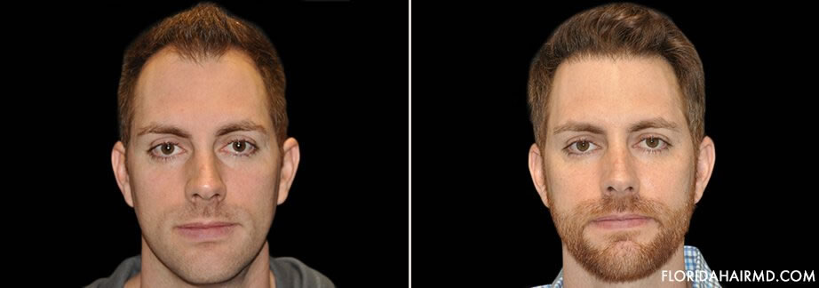Hair Restoration Treatment Before & After