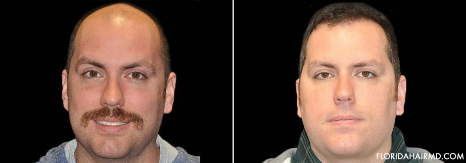 Hair Restoration Treatment Before And After