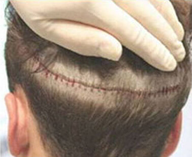 Linear Strip Incision